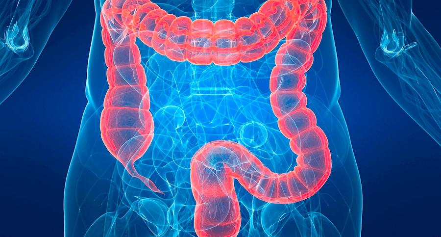 Sindrome de intestino irritable cie 10